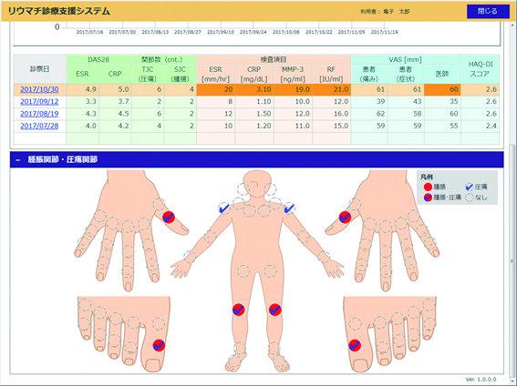 リウマチ診療支援システム | 株式会社DTS